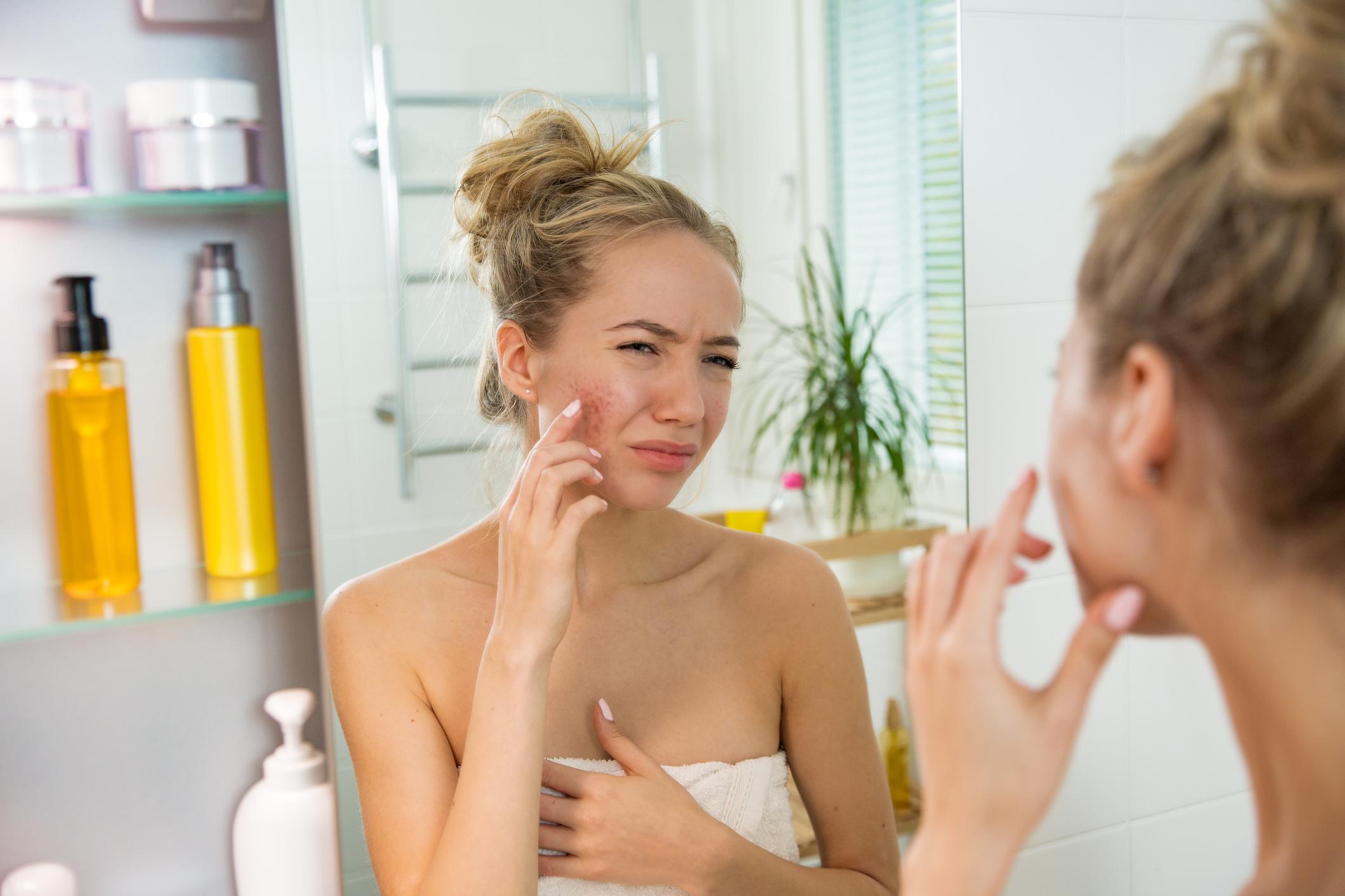 acne antibiotika kur